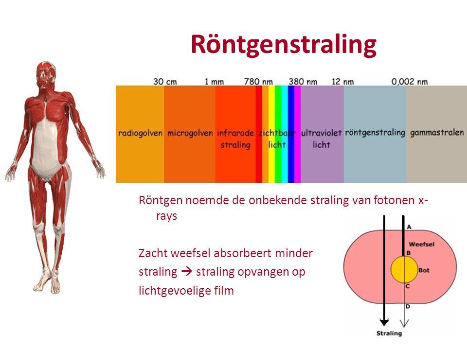 Röntgenstraling Röntgen noemde de onbekende straling van fotonen x- rays Zacht weefsel absorbeert minder straling  straling opvangen op lichtgevoelige film