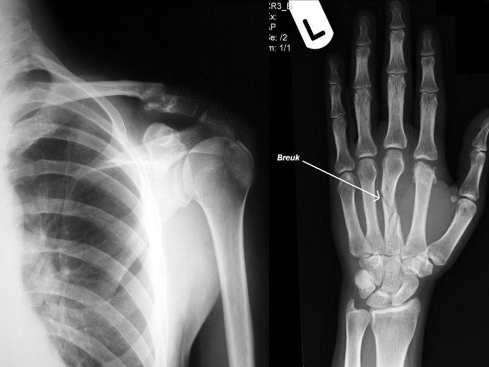 Röntgenstraling