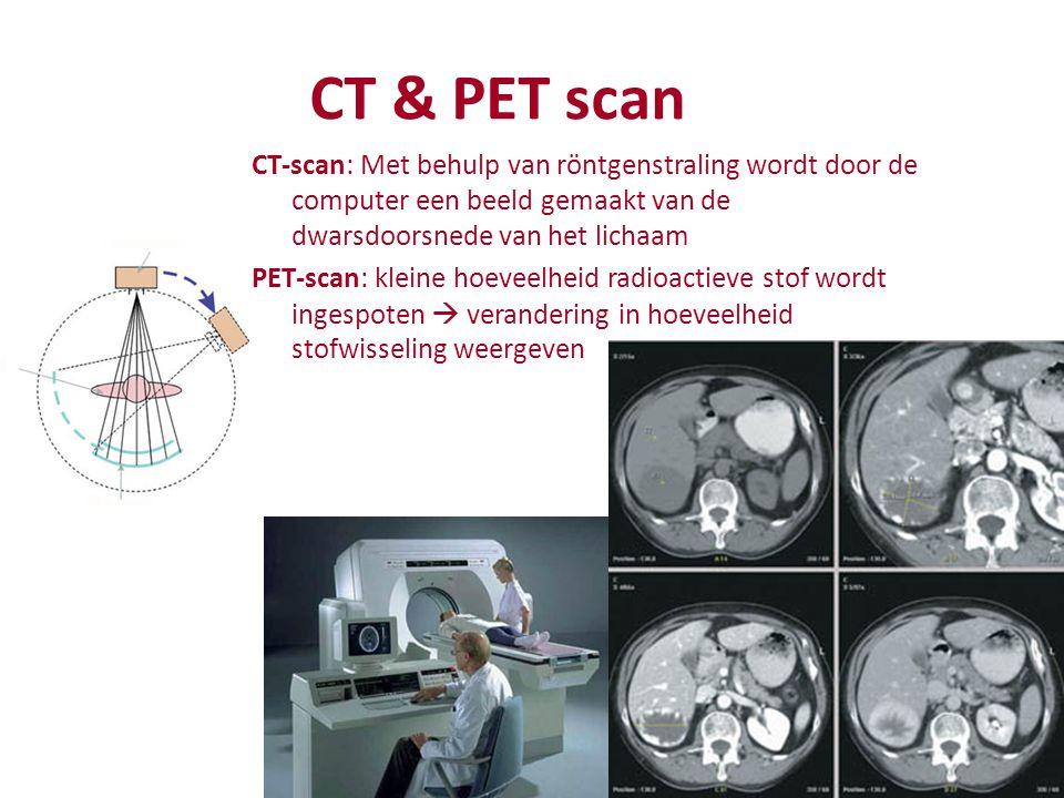 CT & PET scan CT-scan: Met behulp van röntgenstraling wordt door de computer een beeld gemaakt van de dwarsdoorsnede van het lichaam PET-scan: kleine hoeveelheid radioactieve stof wordt ingespoten  verandering in hoeveelheid stofwisseling weergeven