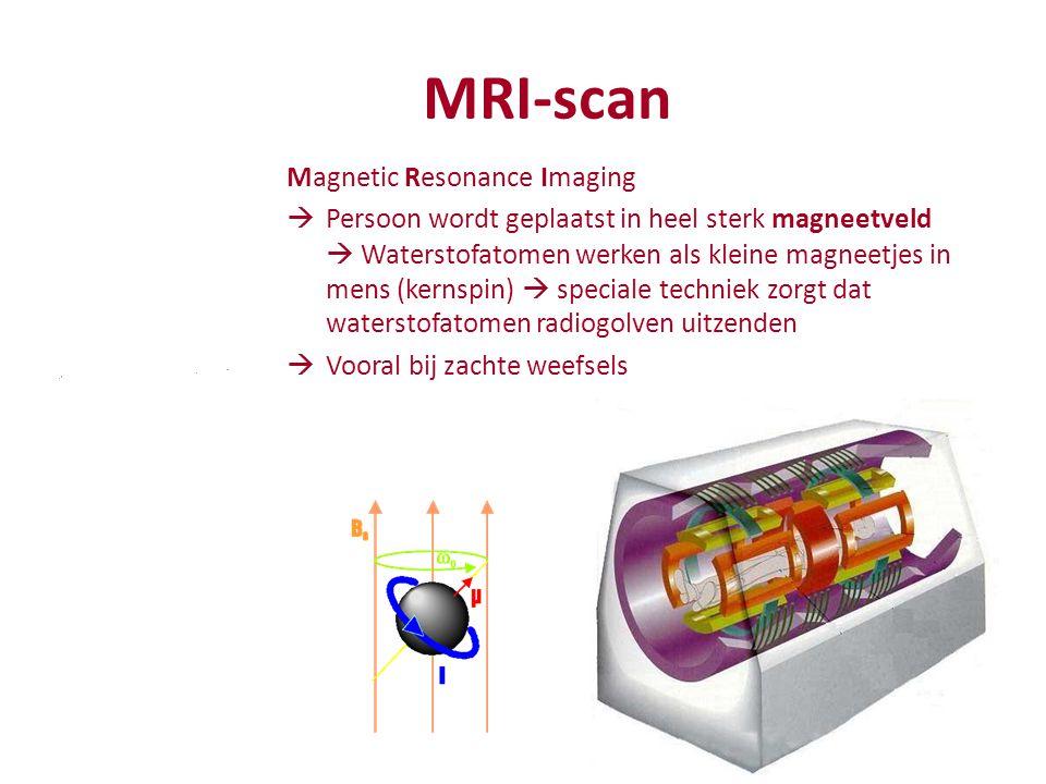 MRI-scan Magnetic Resonance Imaging  Persoon wordt geplaatst in heel sterk magneetveld  Waterstofatomen werken als kleine magneetjes in mens (kernspin)  speciale techniek zorgt dat waterstofatomen radiogolven uitzenden  Vooral bij zachte weefsels