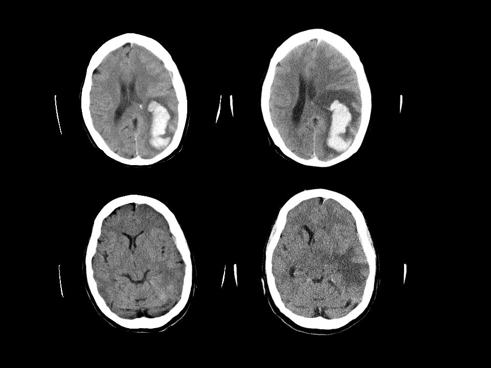 Casus 2 71-jarige man VG/ hypertensie, atriumfibrilleren waarvoor Sintrom EHBO 28/4:acuut onwel, hoofdpijn met braken RR 220/120 E3M6V3, neglect Li, hemiparese Li CT-schedel: diepe bloeding rechter hemisfeer met ventrikeldoorbraak Beloop:- langdurig op intensive care - hydrocefalie waarvoor meerdere ventriculaire drains - recidiverend aspiratiepneumonie bij anarthrie/afagie - 3 maanden in ziekenhuis,1 week na ontslag overleden 9.218.612