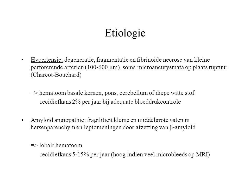 Etiologie Hypertensie: degeneratie, fragmentatie en fibrinoide necrose van kleine perforerende arterien (100-600 μm), soms microaneurysmata op plaats
