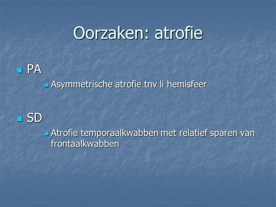 Oorzaken: atrofie PA PA Asymmetrische atrofie tnv li hemisfeer Asymmetrische atrofie tnv li hemisfeer SD SD Atrofie temporaalkwabben met relatief spar