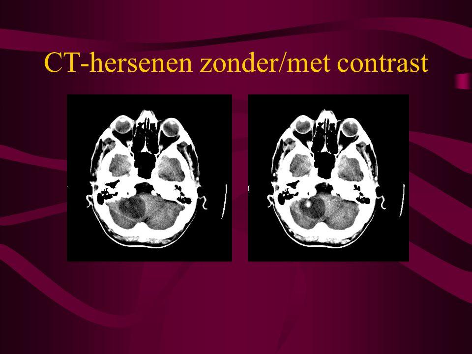 CT-hersenen zonder/met contrast