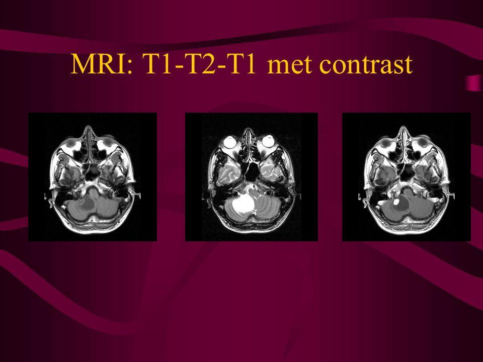 MRI: T1-T2-T1 met contrast