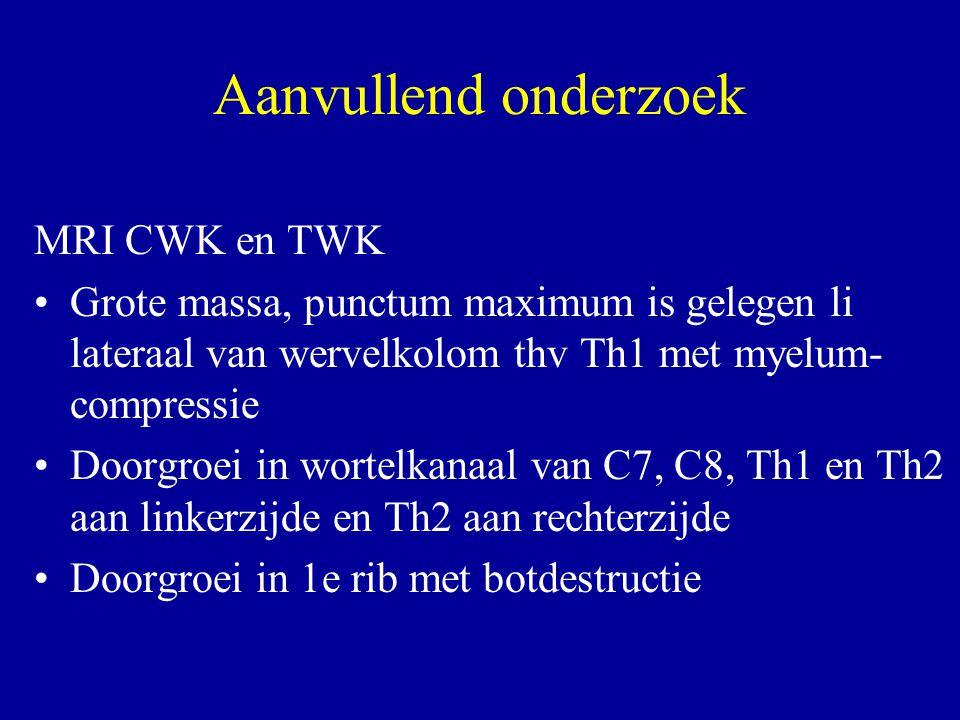 Aanvullend onderzoek MRI CWK en TWK Grote massa, punctum maximum is gelegen li lateraal van wervelkolom thv Th1 met myelum- compressie Doorgroei in wo