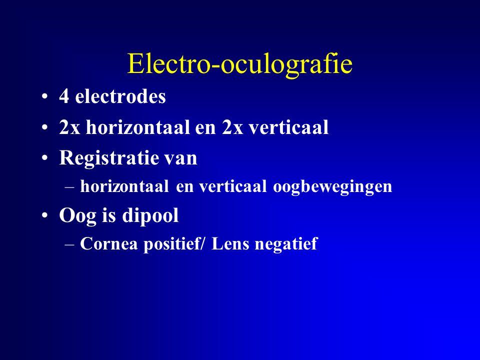 Electro-oculografie 4 electrodes 2x horizontaal en 2x verticaal Registratie van –horizontaal en verticaal oogbewegingen Oog is dipool –Cornea positief