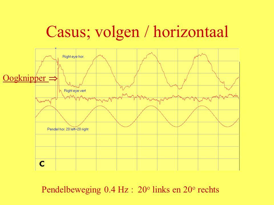 Casus; volgen / horizontaal Oogknipper  Pendelbeweging 0.4 Hz : 20 o links en 20 o rechts