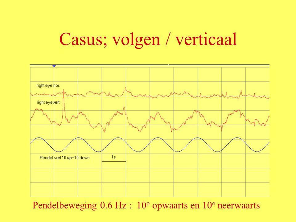 Casus; volgen / verticaal Pendelbeweging 0.6 Hz : 10 o opwaarts en 10 o neerwaarts