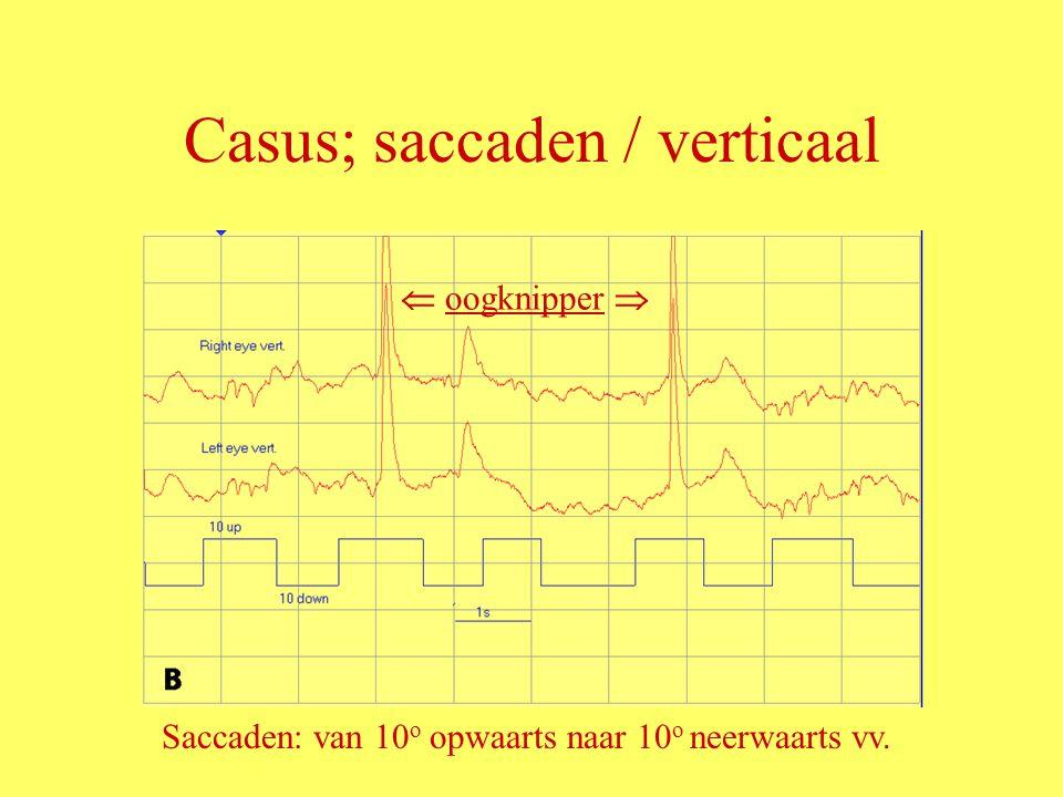 Casus; saccaden / verticaal  oogknipper  Saccaden: van 10 o opwaarts naar 10 o neerwaarts vv.