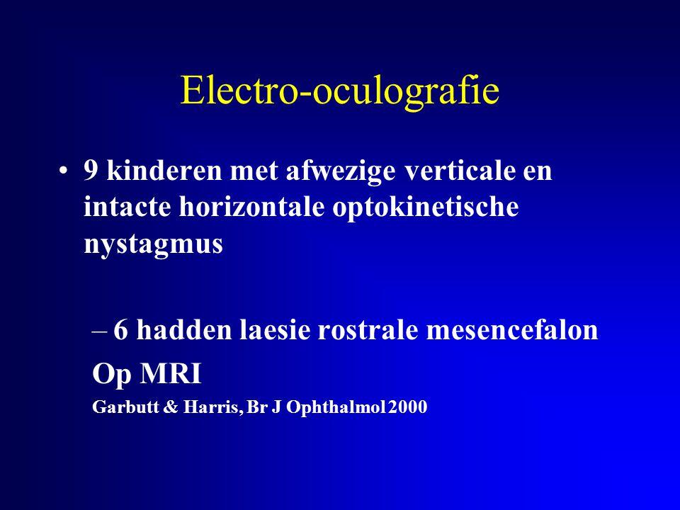 Electro-oculografie 9 kinderen met afwezige verticale en intacte horizontale optokinetische nystagmus –6 hadden laesie rostrale mesencefalon Op MRI Ga