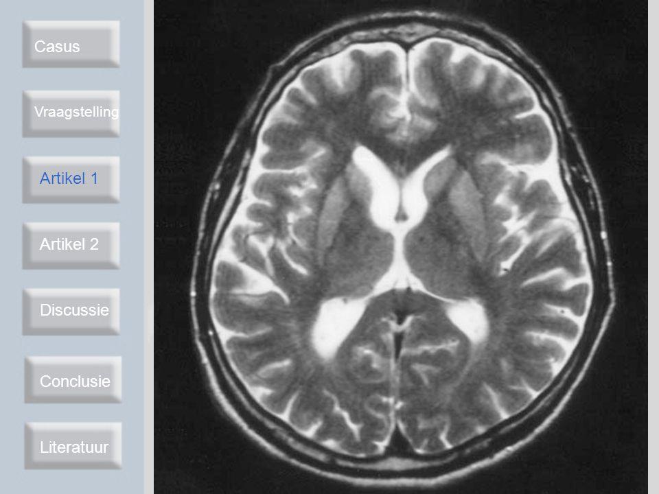 Casus Vraagstelling Artikel 2 Discussie Conclusie Literatuur Artikel 2 Neurology 2004 Diffusion-weighted MRI-abnormalities as an early diagnostic marker for CJD Retrospectief onderzoek 1994 - 2003 n = 26 CJD vs n = 32 controle Twee voor klinische informatie blinde neuro- radiologen Hyperintensiteit: –Striatum –Thalamus –Corticaal Artikel 1