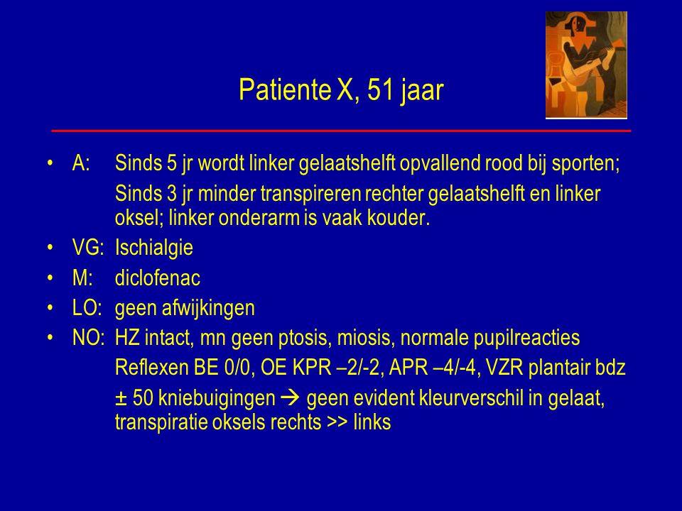 Patiente X, 51 jaar A: Sinds 5 jr wordt linker gelaatshelft opvallend rood bij sporten; Sinds 3 jr minder transpireren rechter gelaatshelft en linker