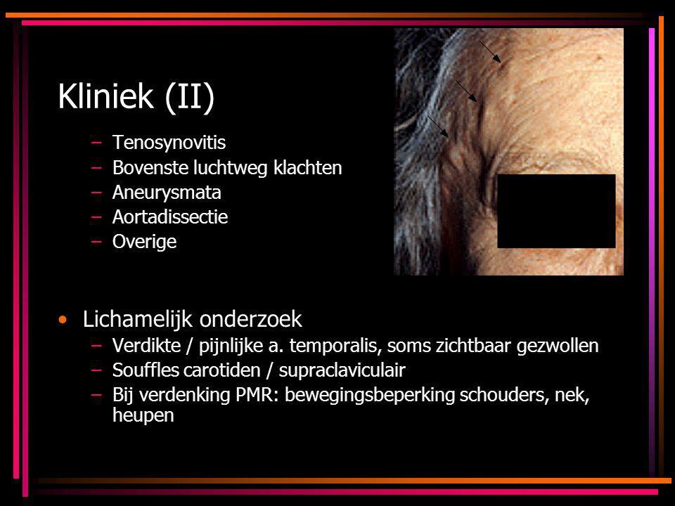 Kliniek (II) –Tenosynovitis –Bovenste luchtweg klachten –Aneurysmata –Aortadissectie –Overige Lichamelijk onderzoek –Verdikte / pijnlijke a. temporali