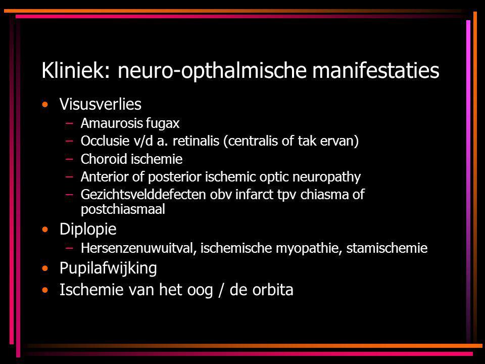 Kliniek: neuro-opthalmische manifestaties Visusverlies –Amaurosis fugax –Occlusie v/d a. retinalis (centralis of tak ervan) –Choroid ischemie –Anterio