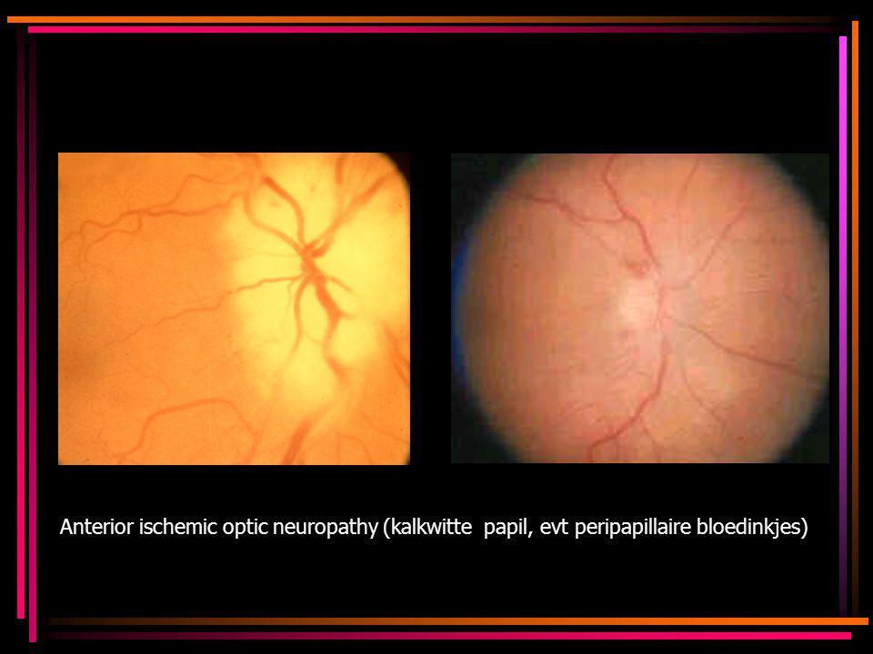 Anterior ischemic optic neuropathy (kalkwitte papil, evt peripapillaire bloedinkjes)