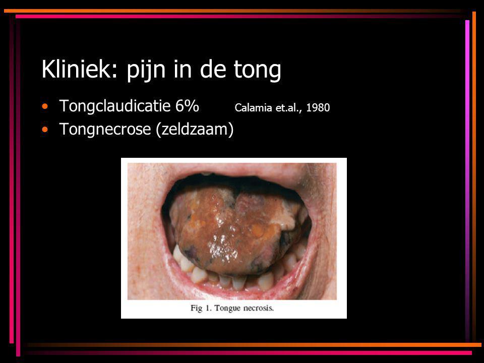 Kliniek: pijn in de tong Tongclaudicatie 6% Calamia et.al., 1980 Tongnecrose (zeldzaam)