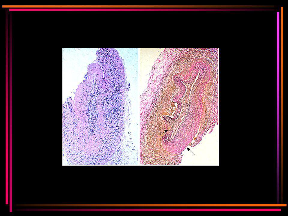 Classificatie vlgs American College of Rheumatology Drie van de volgende criteria (sensitiviteit 94%; specificiteit 91%) 1.Leeftijd >50 jaar bij onset 2.Nieuw ontstane gelokaliseerde hoofdpijn 3.Pijn of verminderde pulsatie v/d a.