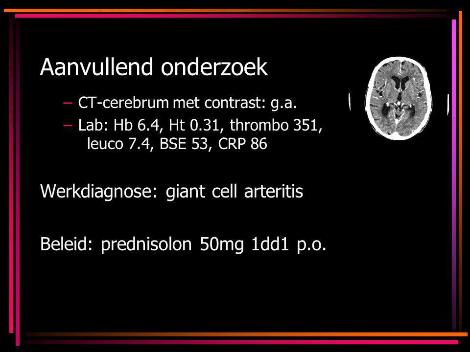 Aanvullend onderzoek –CT-cerebrum met contrast: g.a. –Lab: Hb 6.4, Ht 0.31, thrombo 351, leuco 7.4, BSE 53, CRP 86 Werkdiagnose: giant cell arteritis