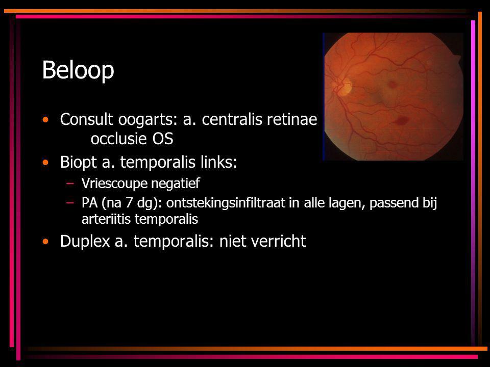 Beloop Consult oogarts: a. centralis retinae occlusie OS Biopt a. temporalis links: –Vriescoupe negatief –PA (na 7 dg): ontstekingsinfiltraat in alle