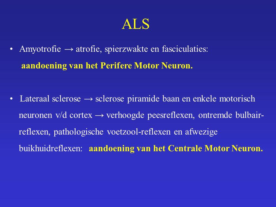ALS Amyotrofie → atrofie, spierzwakte en fasciculaties: aandoening van het Perifere Motor Neuron. Lateraal sclerose → sclerose piramide baan en enkele