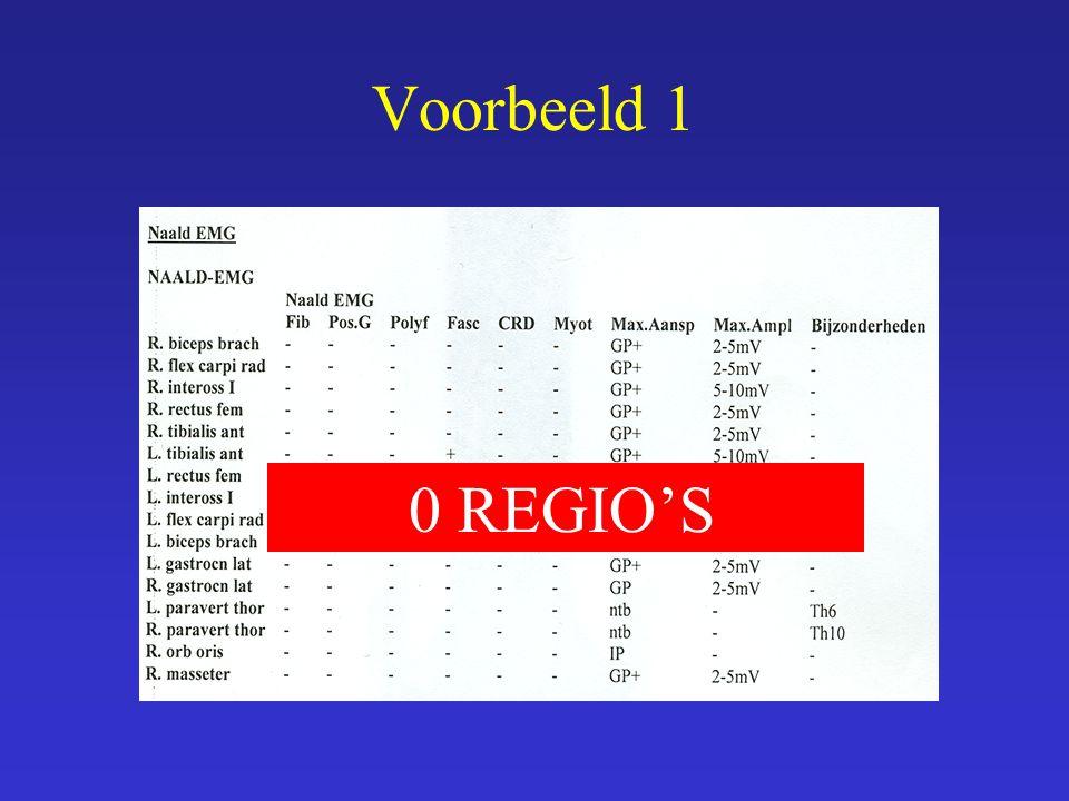 0 REGIO'S