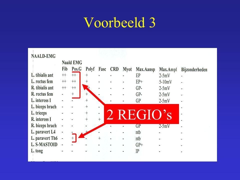 2 REGIO's
