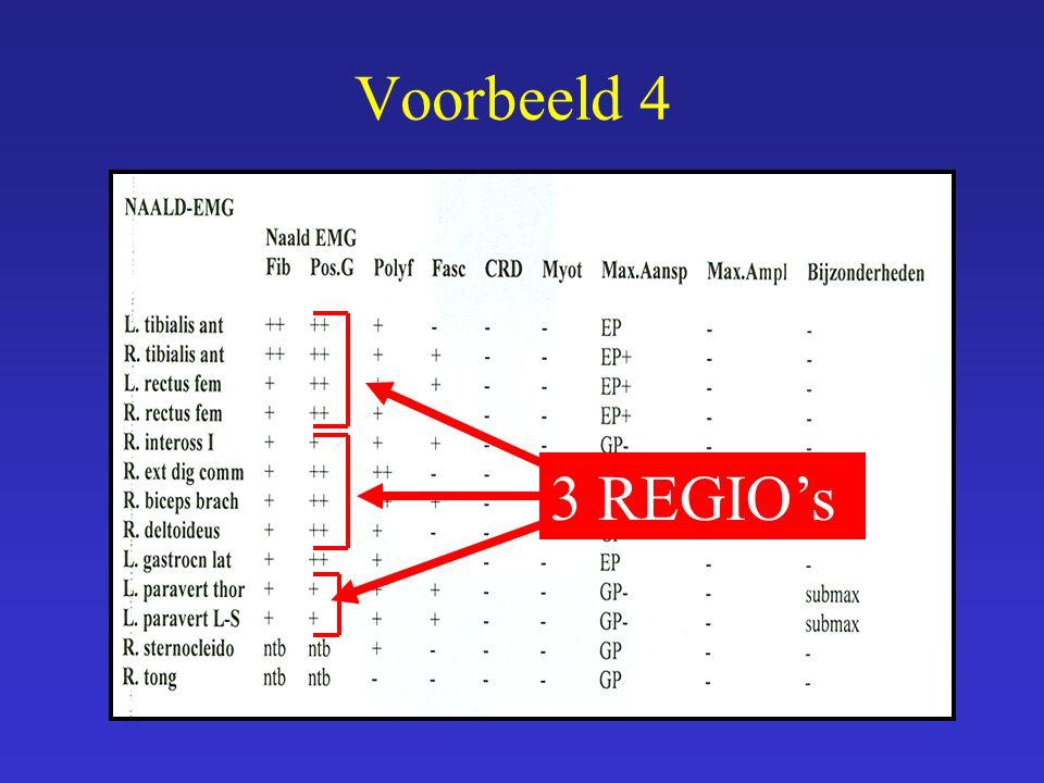 3 REGIO's