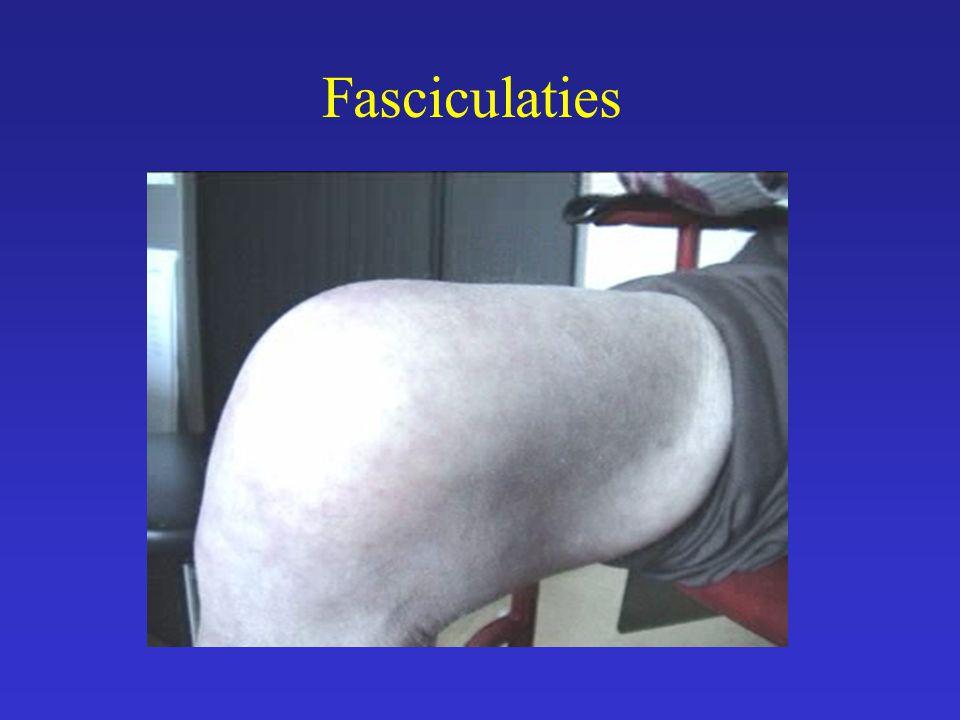 Fasciculaties