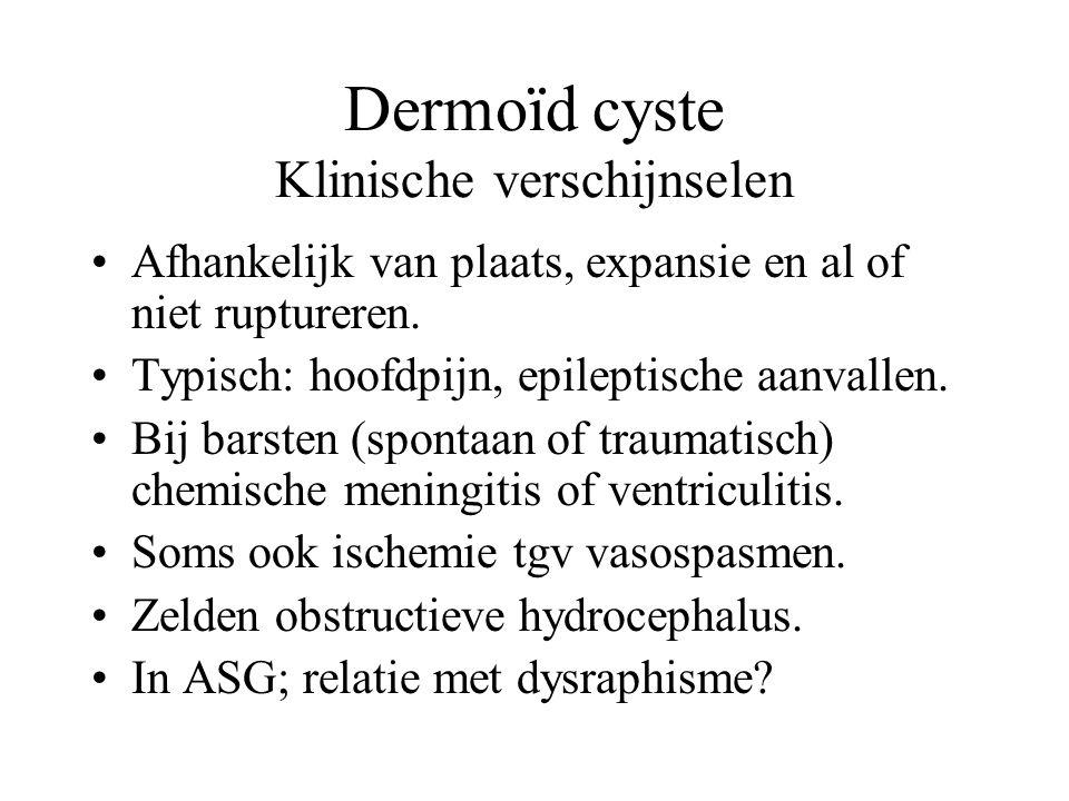 Dermoïd cyste Klinische verschijnselen Afhankelijk van plaats, expansie en al of niet ruptureren. Typisch: hoofdpijn, epileptische aanvallen. Bij bars