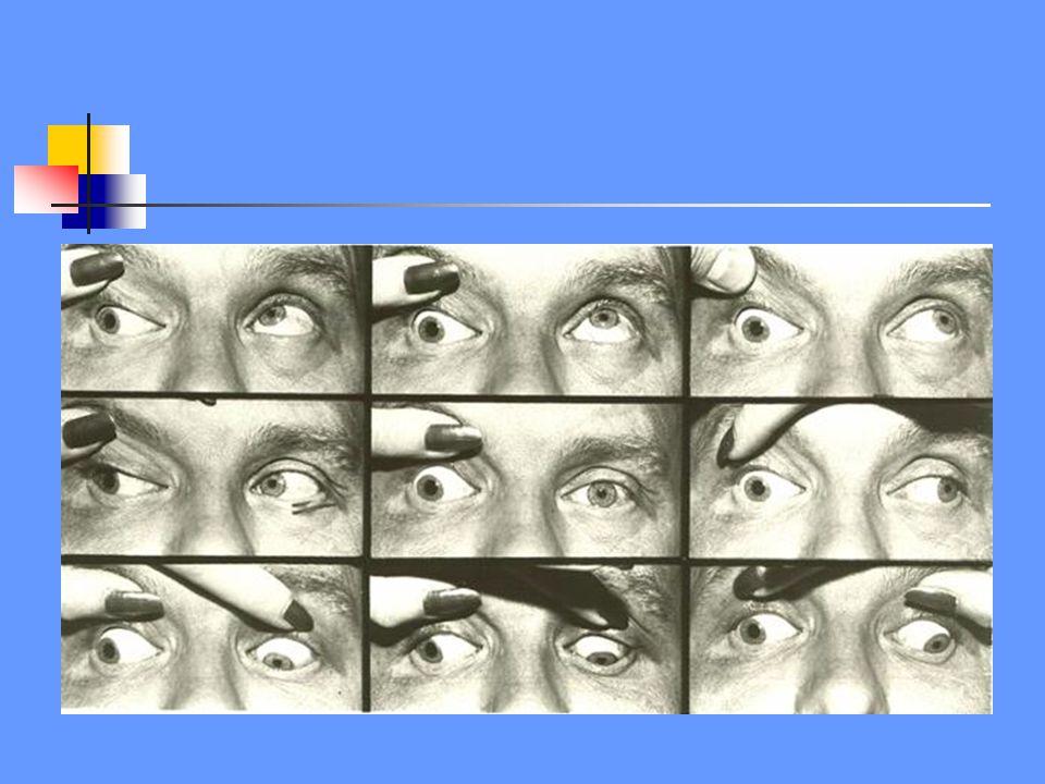 N.III N.VI flm X L -ipsilaterale adductie en elevatie beperking -oog staat in abductie en depressie -ptosis en mydriasis