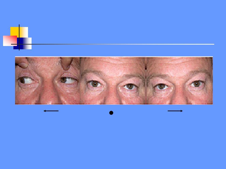 N.III N.VI flm X L -ipsilaterale horizontale blikparese -rechte oogstand of contralaterale dwangstand