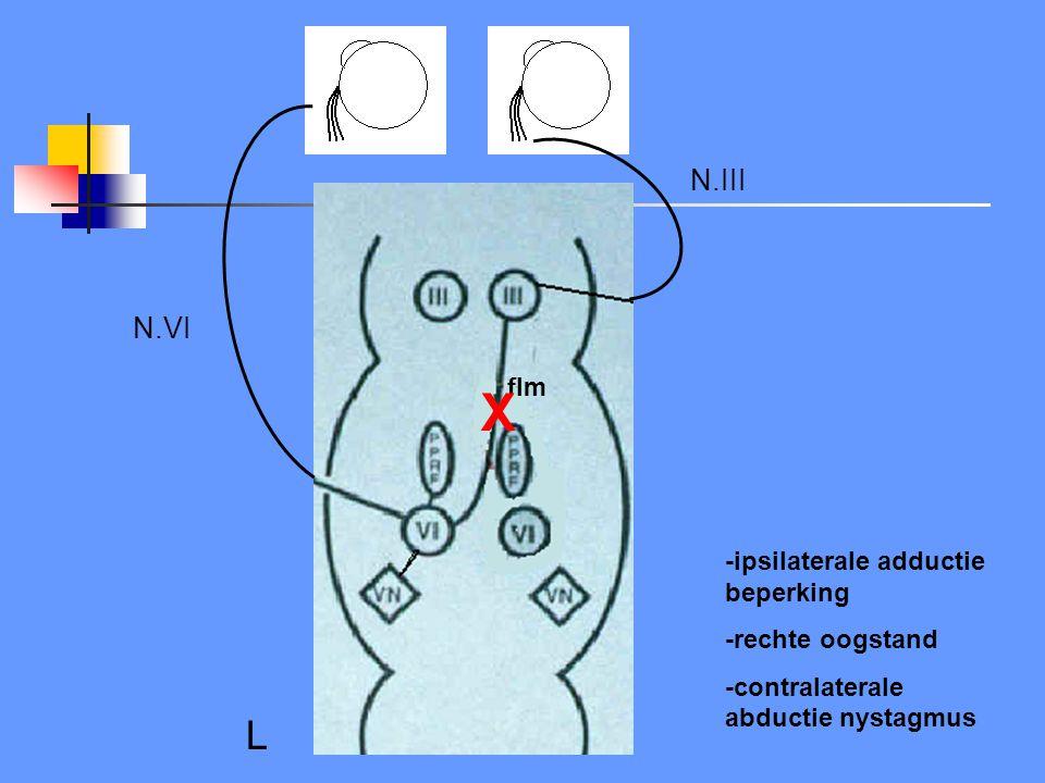 Oorzaken INO (internucleaire ophtalmoplegie) Demyelinisatie Staminfarct/bloeding Tumor Syringobulbie Meningoencefalitis Wernicke Trauma