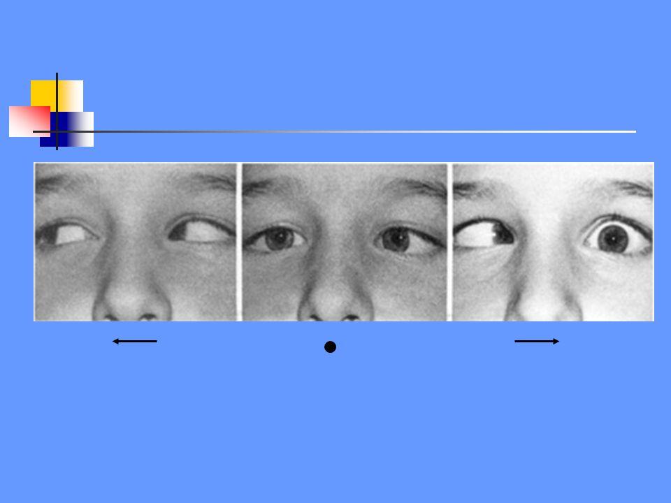 N.III N.VI flm X L -ipsilaterale abductie beperking -oog staat in adductie