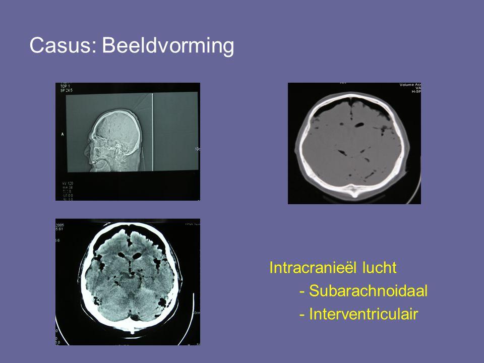 Terug naar de Casus Beloop –EHBO; Start Ceftriaxon 1dd2 gram Overplaatsing neurochirurgisch centrum –Afdeling Neurologie NO; Helder bewustzijn, behoudens abductiebeperking rechter oog geen afwijkingen.