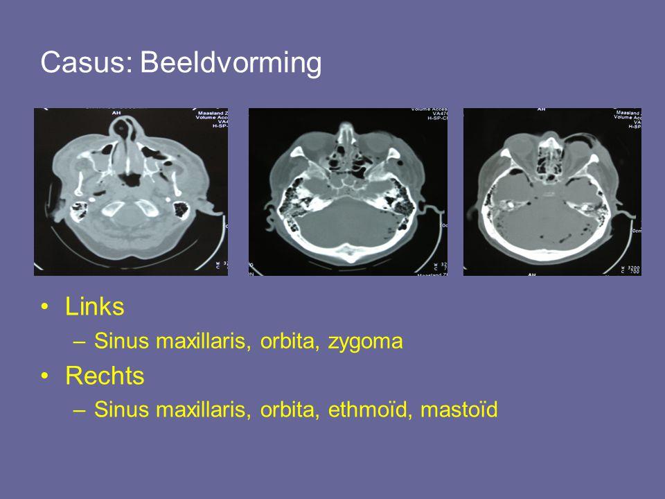 Casus: Beeldvorming Links –Sinus maxillaris, orbita, zygoma Rechts –Sinus maxillaris, orbita, ethmoïd, mastoïd