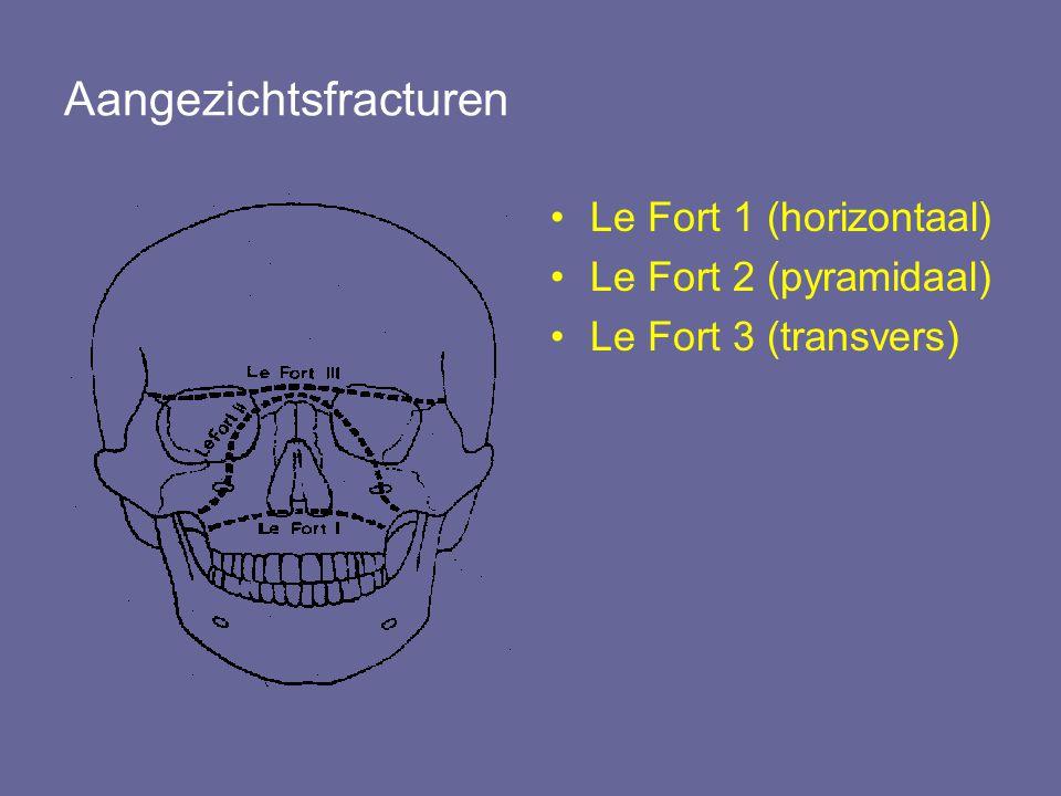 Aangezichtsfracturen Le Fort 1 (horizontaal) Le Fort 2 (pyramidaal) Le Fort 3 (transvers)