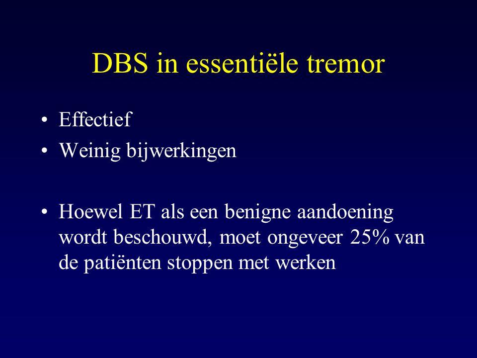 DBS in essentiële tremor Effectief Weinig bijwerkingen Hoewel ET als een benigne aandoening wordt beschouwd, moet ongeveer 25% van de patiënten stoppe