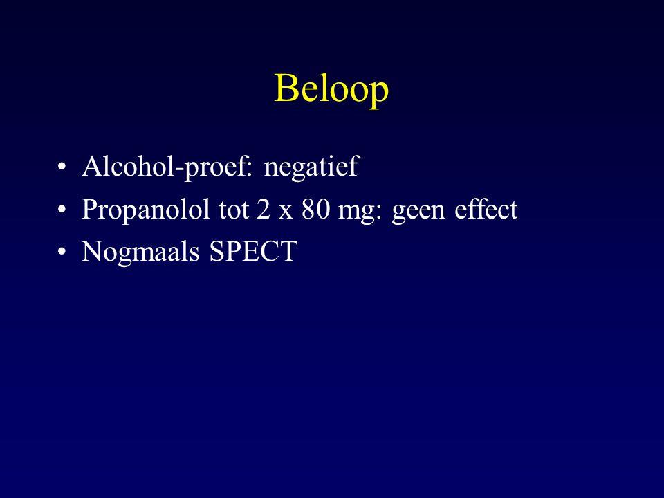 Beloop Alcohol-proef: negatief Propanolol tot 2 x 80 mg: geen effect Nogmaals SPECT