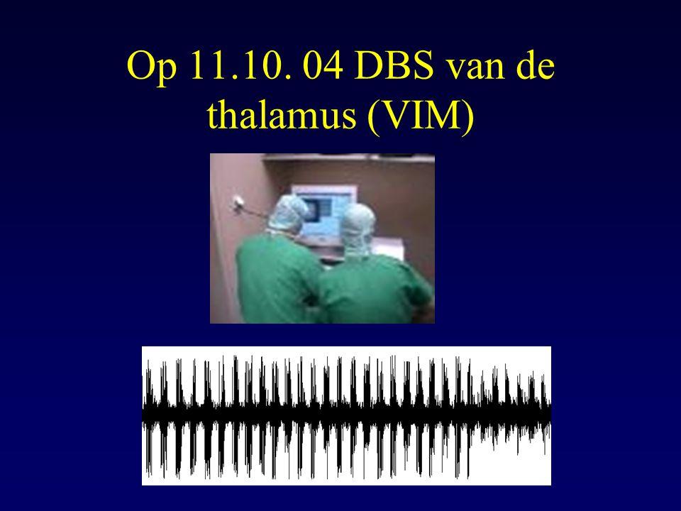Op 11.10. 04 DBS van de thalamus (VIM)