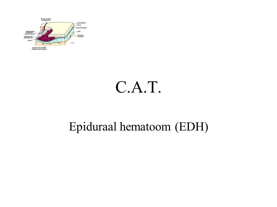 C.A.T. Epiduraal hematoom (EDH)