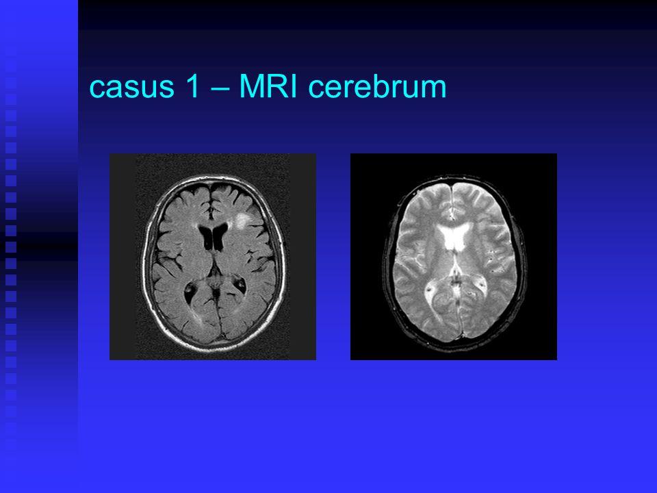 casus 1 – MRI cerebrum