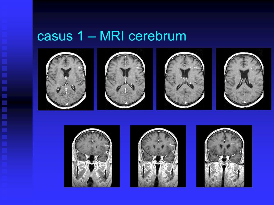 casus 1 – vervolg bij aanvullend MRA g.a.v.AVM bij aanvullend MRA g.a.v.