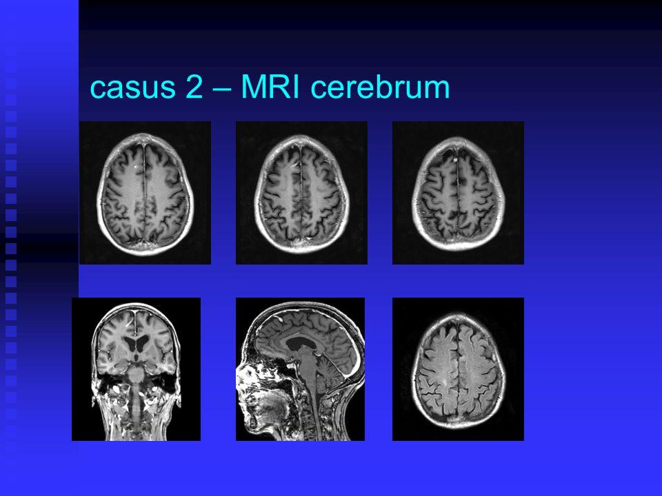 casus 2 – MRI cerebrum
