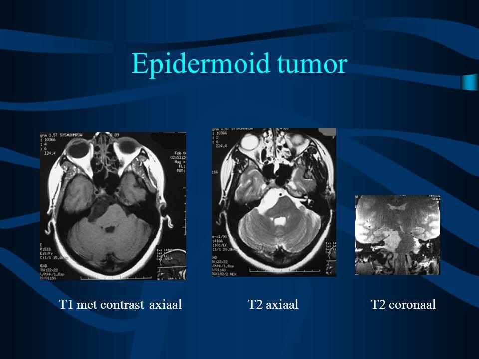 Epidermoid tumor T1 met contrast axiaal T2 axiaal T2 coronaal