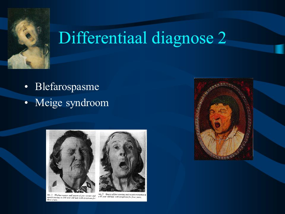 Differentiaal diagnose 2 Blefarospasme Meige syndroom