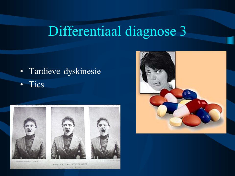 Differentiaal diagnose 3 Tardieve dyskinesie Tics