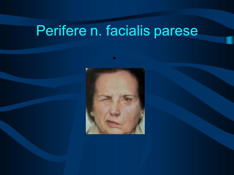 Perifere n. facialis parese