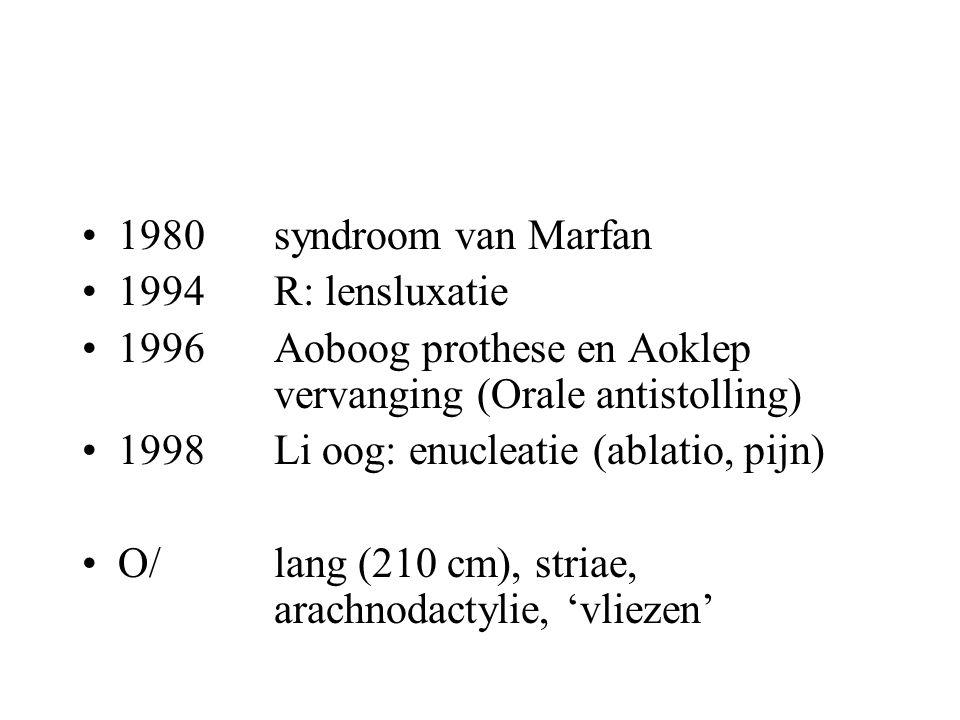 1980 syndroom van Marfan 1994R: lensluxatie 1996 Aoboog prothese en Aoklep vervanging (Orale antistolling) 1998 Li oog: enucleatie (ablatio, pijn) O/