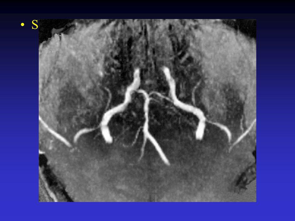 Meest recente studies Devuyst et al, Arch Neurol 59: 567-73, 2002 Voetsch et al, Arch Neurol 61: 496-504, 2004 Slechte outcome: 54% en 28.7%